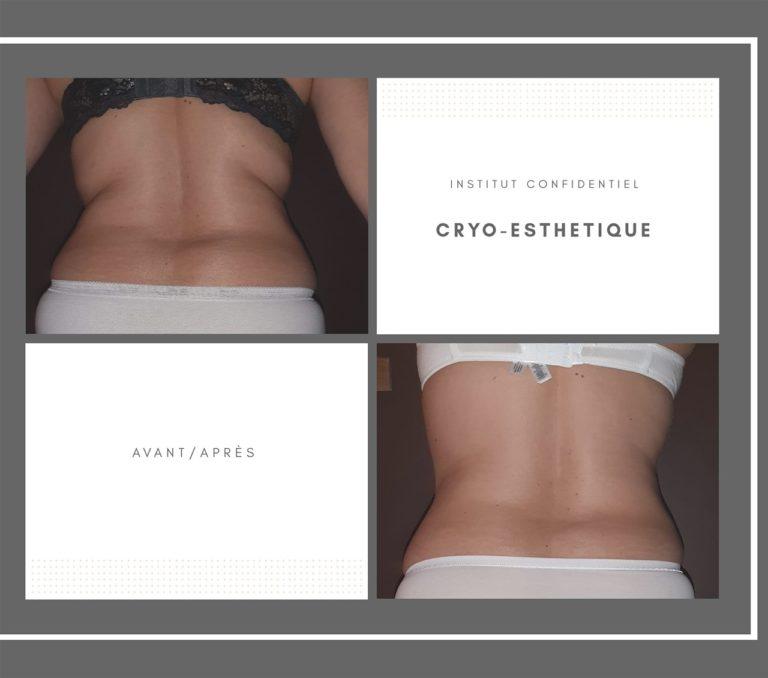 Avant / Après Cryo-Esthétique